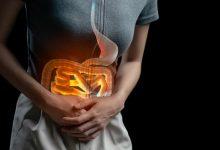 علاج الاسهال بالطب البديل