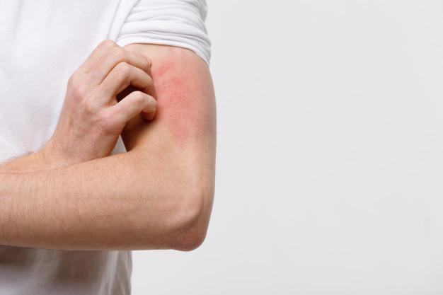 ما هي فوائد الاعشاب للجلد